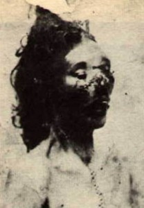 The disfigured face of Ripper victim Catherine Eddowes.